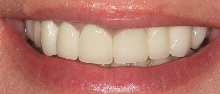 dental smile makeover