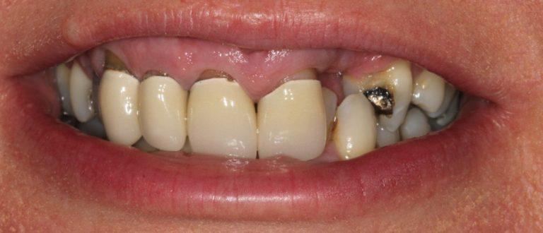 dentist smile makeover
