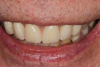 John after smile makeover at Dental Beauty Mottingham in south east london