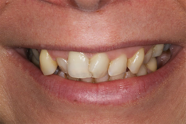 teeth straightening in mottingham