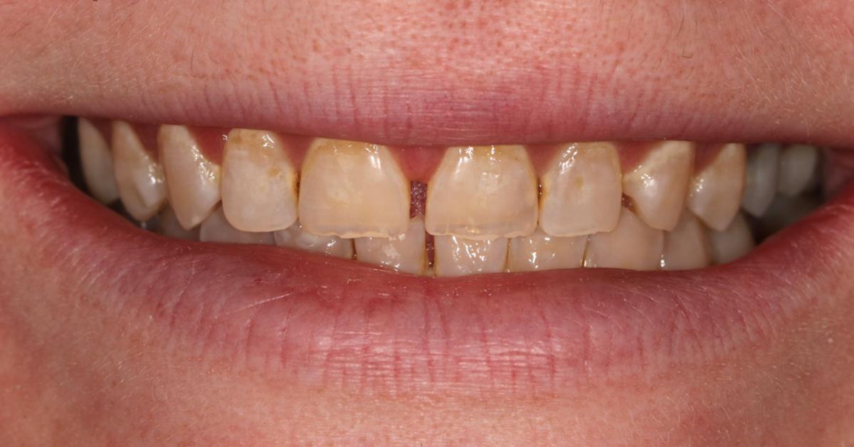 dental beauty cosmetic bonding treatment befiore 3